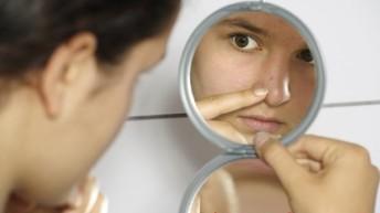 Несколько способов лечения шрамов от угревой сыпи.