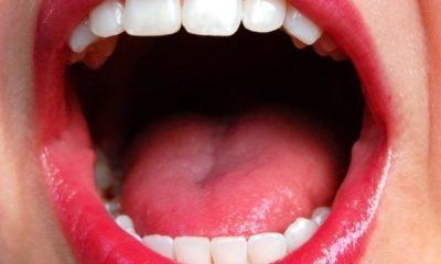 Быстрые средства от зубной боли.